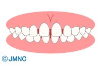 っ 歯 すき 乳歯 赤ちゃんはすきっ歯でも歯並びは大丈夫なの?
